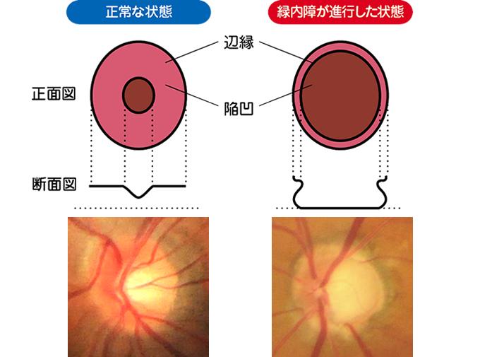 緑内障 視神経乳頭