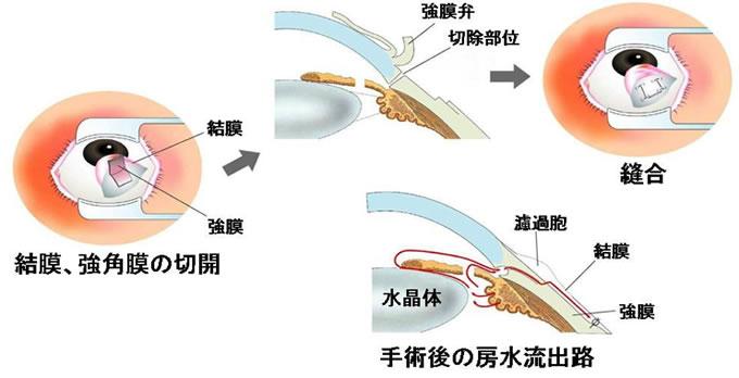 線維柱帯切除術