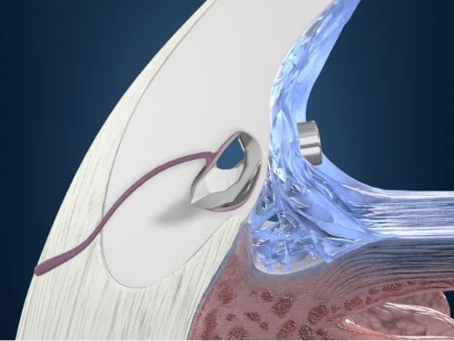 水晶体再建術併用眼内ドレーン挿入術