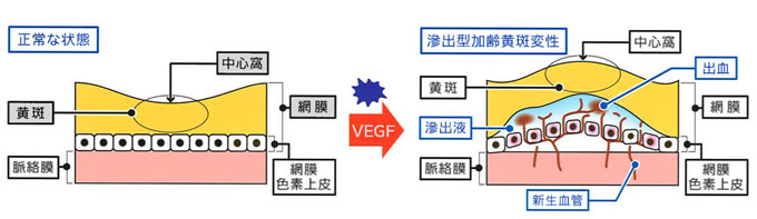 抗VEGF注射