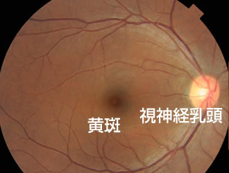 網膜硝子体について