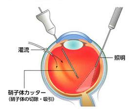 硝子体手術