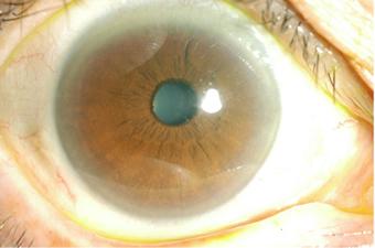 健常眼:虹彩は問題ない