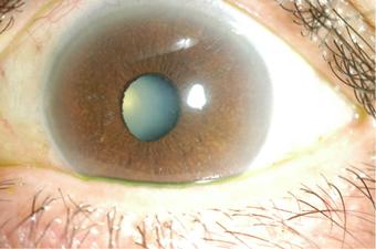 患眼:虹彩の萎縮、異色が見られる