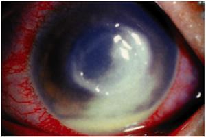 細菌性角膜炎・角膜潰瘍